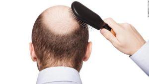 薄毛予防薄毛対策