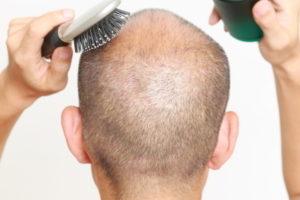 薄毛対策発毛効果
