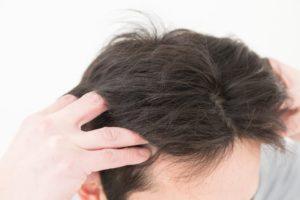 薄毛対策2