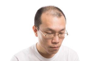 薄毛治療AGAヘアクリニック