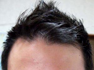 薄毛 皮膚科