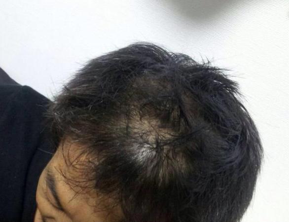 髪の毛は抜ける