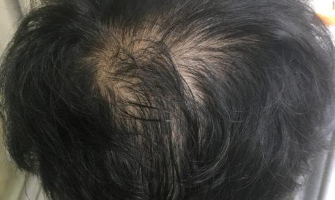 ペインクリニック 薄毛