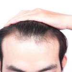 薄毛治療 皮膚科