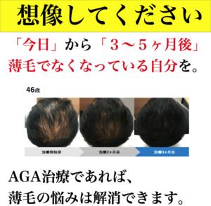 育毛剤 副作用
