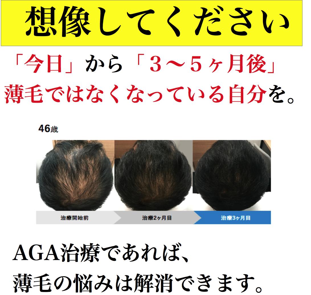 AGA治療効果